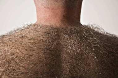 17-back-hair.w710.h473.2x